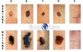 """त्वचा कैंसर के संकेतों को कैसे पहचानें? एक जीवन रक्षक इशारा """"त्वचा कैंसर दुनिया में कैंसर का सबसे आम प्रकार है"""""""